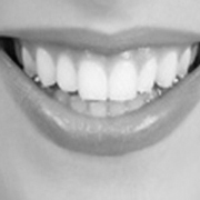 Whiter Teeth and Your Confidence